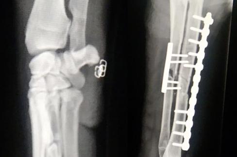 Röntgenbild mit digitaler Röntgentechnik aufgenommen